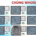 Chủng Vân tay WHORL – Vân Tròn Xoáy